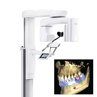 CT Scan ถ่ายภาพฟัน