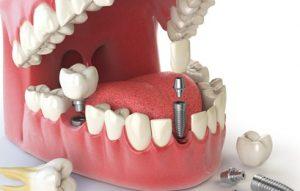รากฟันเทียม ฟันหน้า