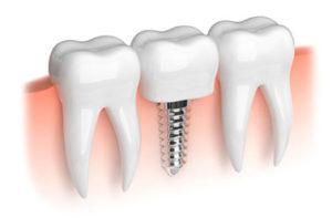บริการรากฟันเทียม