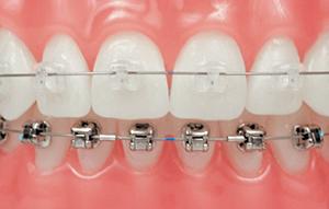 จัดฟันราคาเท่าไหร่