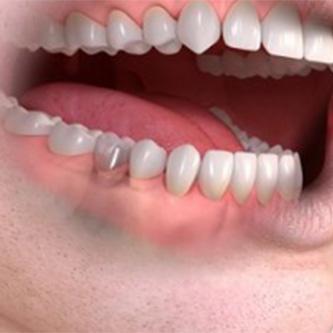 รากฟันเทียม ครอบฟัน