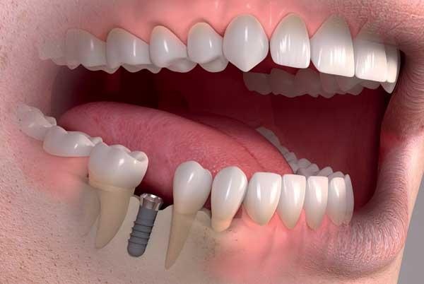 รากฟัน เทียม osstem ดี ไหม
