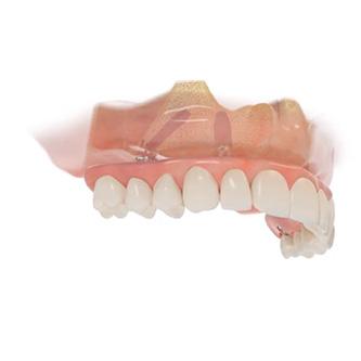 รากฟันเทียม neobiotech