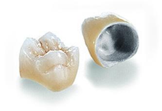 ครอบฟัน pfm