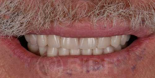 รากฟันเทียมที่ไหนดี