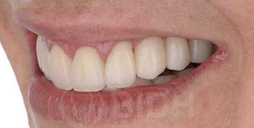 รากฟันเทียมแพงไหม