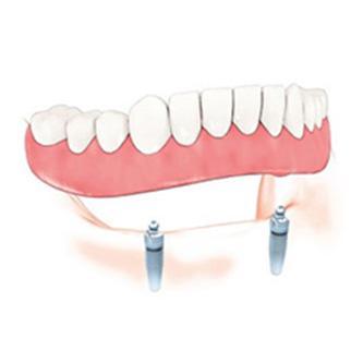 ฟันปลอมมีกี่แบบ