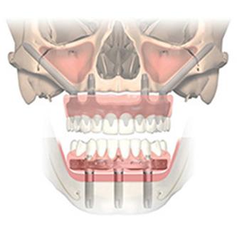 รากฟันเทียม zygoma