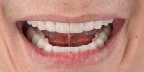 ทำฟัน จัดฟัน