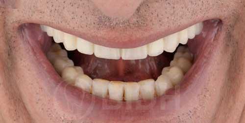 จัดฟันที่ไหนดี