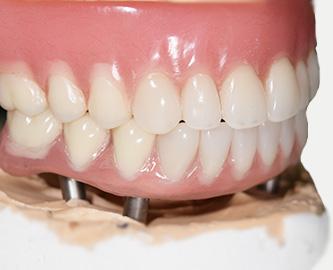 ฟันปลอม รอรับได้เลย สุขุมวิท 2