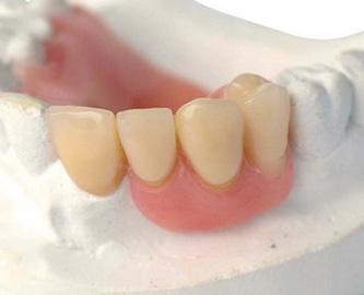 ฟันปลอมถาวร