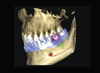 รากฟันเทียม osstem