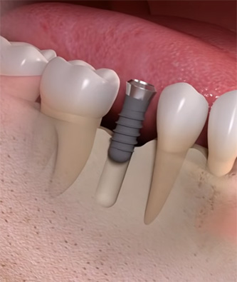 รากฟันเทียม dentium