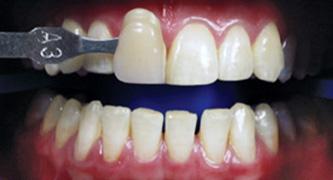 ระดับสีของฟัน