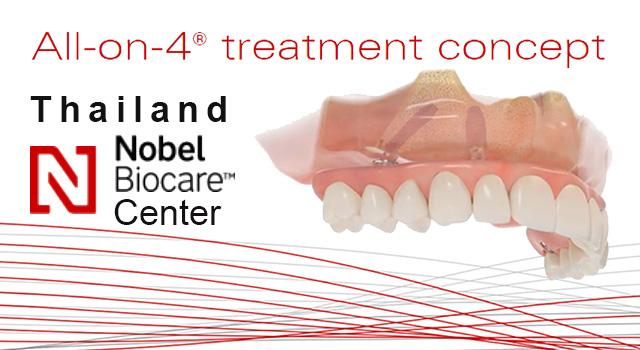 nobel biocare รากฟันเทียม