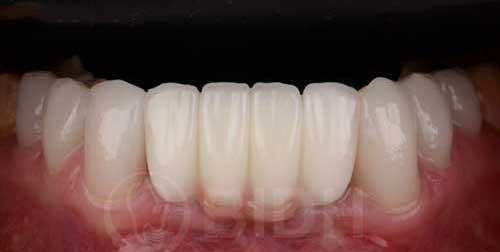 รากฟันเทียม ฟันกราม