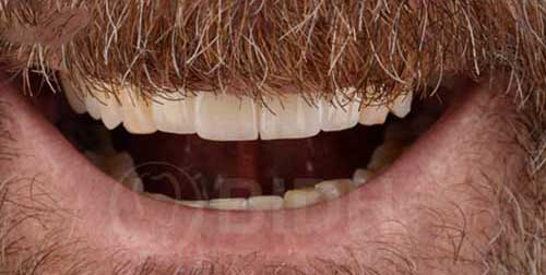 ราคาจัดฟัน 2562