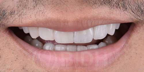 จัดฟันกี่ประเภท